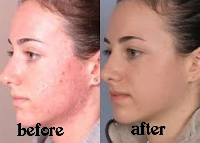 Fastest Way To Erase Dark Spots On Skin