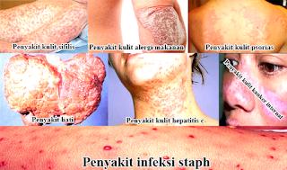 jenis penyakit kulit yang mengancam nyawa.