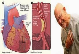 Obat Jantung Koroner Herbal Cardio Power Capsule