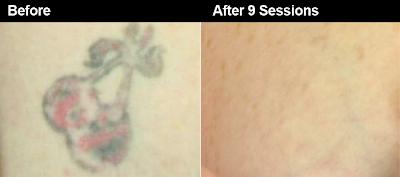 The Tattoo Removal Process & the Lasers that are Used