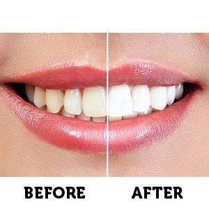 Simple Ways To Whiten Your Teeth  2019
