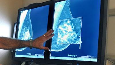 Older Women and Brest Cancer Risk