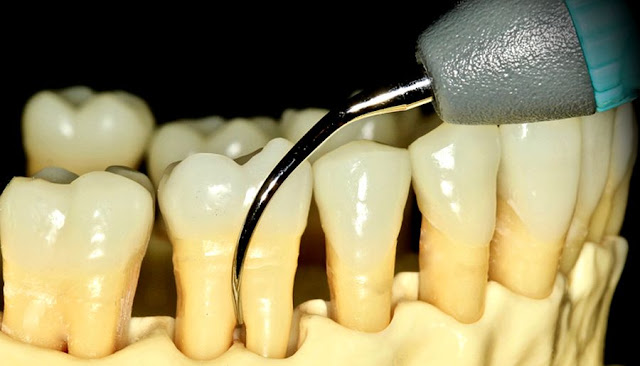 FURCATION: The anatomic area of a multirooted tooth where the roots diverge