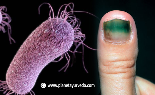 ayurvedic treatment for pseudomonas aeruginosa infection - dr, Skeleton