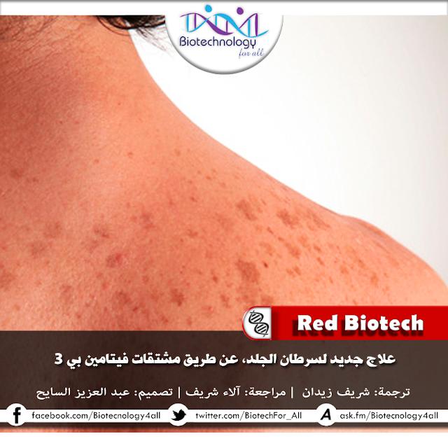 دراسة تكشف عن أن مشتقات فيتامين «B» تعالج سرطان الجلد