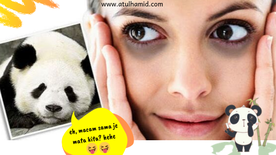 Testimoni Youth Eye Cream: Tiada Lagi Eye Bag dan Mata Panda