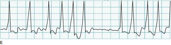 Atrial fibrillation with a Wolf-Parkinson-White accessory pathway
