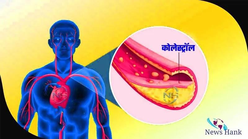 cholesterol - newshank.com