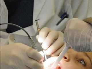 Nên cắt viêm amidan hay không
