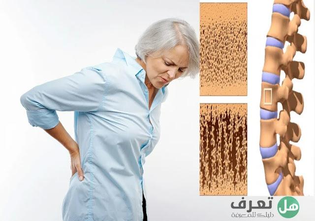 هل تعرف هشاشة العظام أسبابها وأنواعها ؟