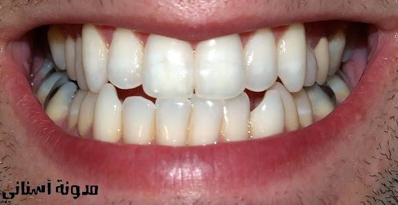 الحقيقة حول تسوس الأسنان أو تسوس الأسنان.