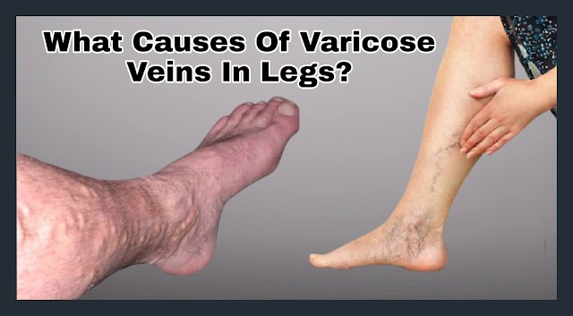 What Causes of Varicose Veins In Legs?