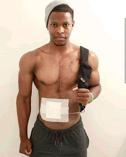 28-Year-Old Man Who Walks Around With His Artificial Heart In A Bag 24/7 - PHOTOS