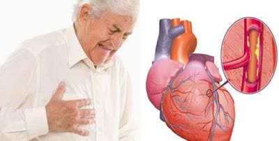 Hubungan Antara Pendengaran Dan Kesehatan Jantung