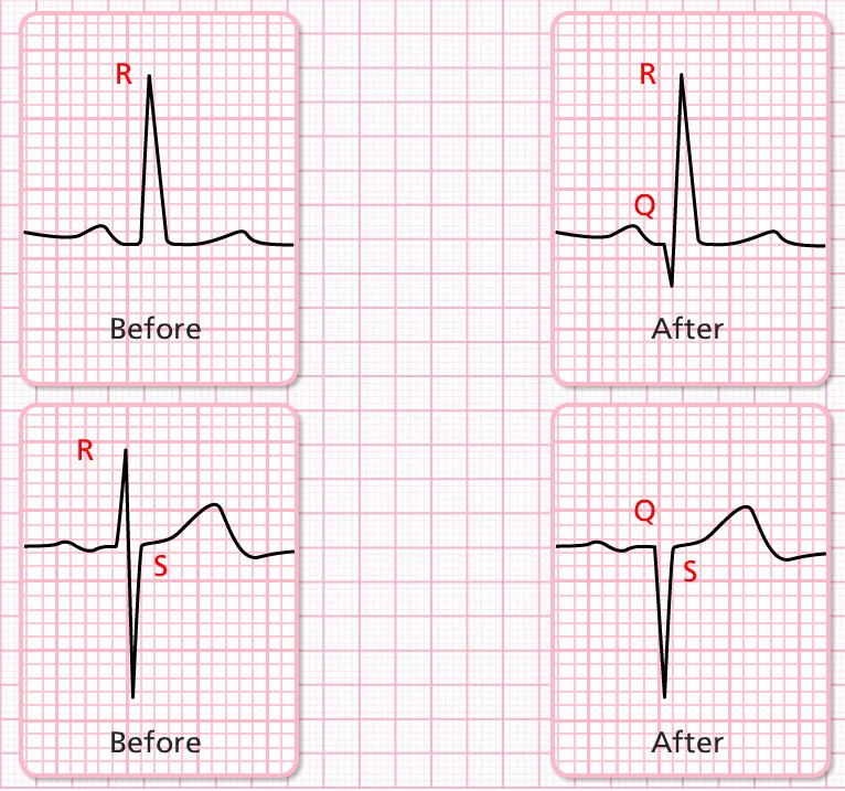 CVT Mohd Farid: ECG &a...Q Wave