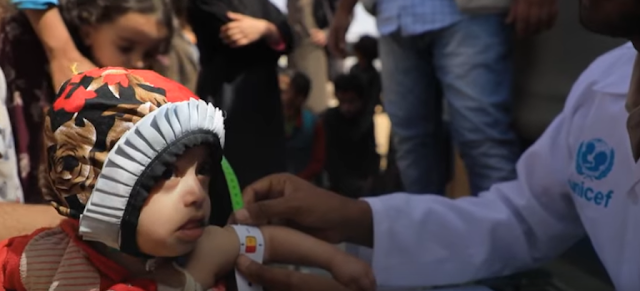 Are we the Children of a lesser God? Yemen cries