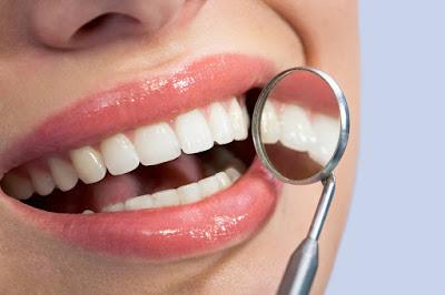 diş teli kullanımı ve sonrası