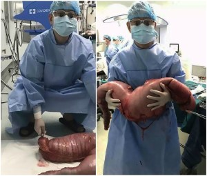 28 Pounds And 30 Inches Of Large Intestine Were Surgically Removed From A Man Who Has Been Constipated For 22 Years!