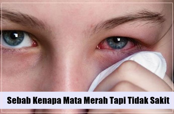 10 Sebab Kenapa Mata Merah Tapi Tidak Sakit