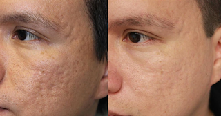 Get to Know about Acne Scar Removal Los Angeles