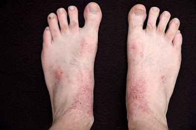 bệnh Nấm chân
