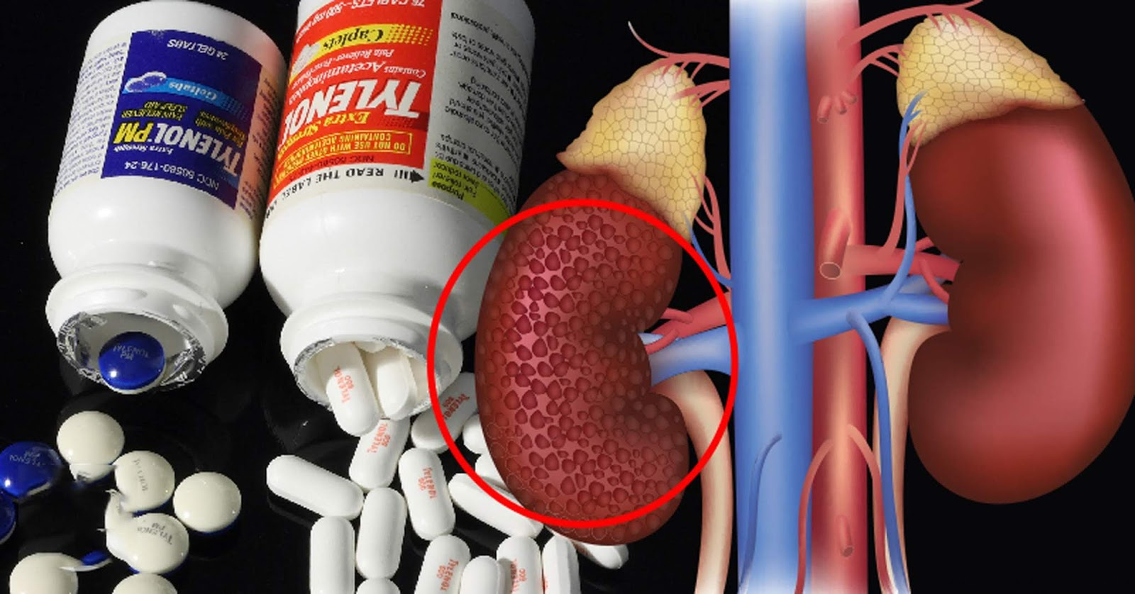 9 Things You Are Doing That are Killing Your Kidneys That You Need to Stop Doing Immediately