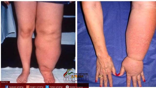 مرض الليمفوديما (التورم الليمفاوي ) تشخيصه والوقاية منه وعلاجه