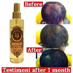 testimoni-hair-tonic-malaysia