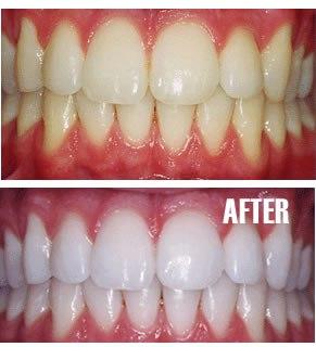 gigi bisa jadi putih cepat dalam 1 jam