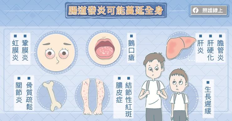腸道發炎可能蔓延全身