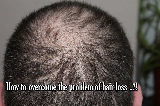 How to overcome the problem of hair loss