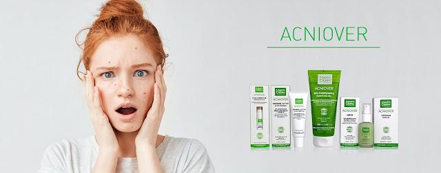 portada-acniover
