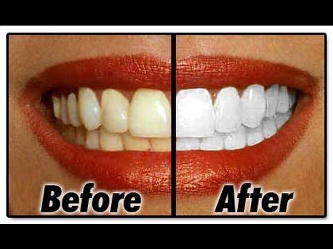 Cara Sederhana Memutihkan Gigi
