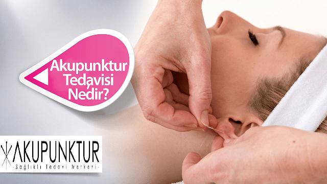 akupunktur tedavisi nedir