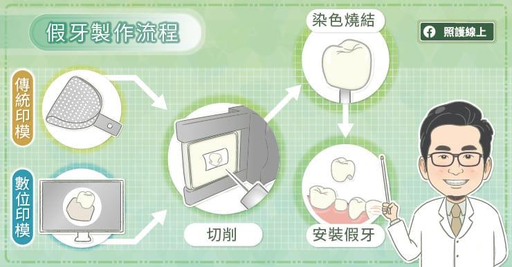 假牙製作流程