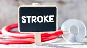 Penyebab stroke pada usia muda