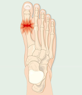 joint pain big toe -  these are the causes: dietickdie