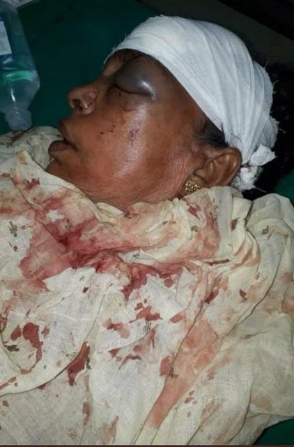 Bengal Violence Photos