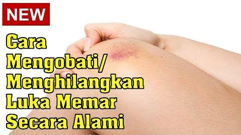 Cara mengobati luka Memar