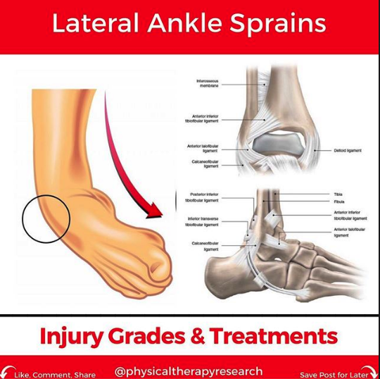 Lateral Ankle Sprains: Injury & Treatments