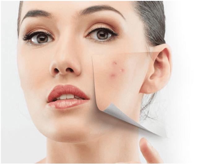 Bột nghệ có công dụng gì? Lợi ích của nghệ cho da và cho sức khỏe
