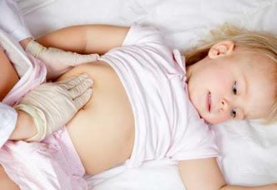penyebab konstipasi pada bayi
