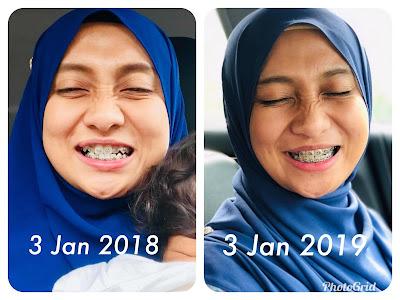Anniversary braces