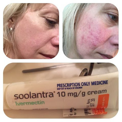 Scarlet Letters Dealing With Vascular Rosacea Face Flushing