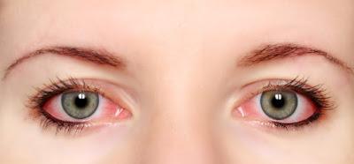 16 Cara Ampuh Mengatasi Mata Merah dengan Cepat dan Alami