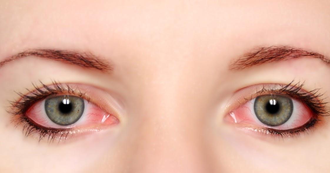 cara menghilangkan mata merah
