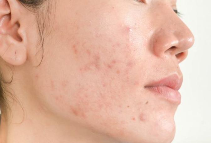 Tips Untuk Menghilangkan Flek Hitam Di Wajah | SehatQ.com