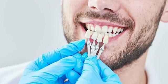 Tahukah Anda yang Dimaksud dengan Tindakan Medis Veneer Gigi? Begini Penjelasannya Menurut SehatQ.com