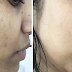 Easy Formula To Get Rid Of Brown Spots on Face And Skin Naturally