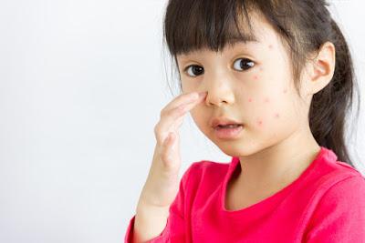 4 Penyebab Alergi Pada Anak